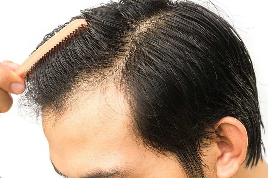 How to Avoid Overpaying In Your Hair Transplant?