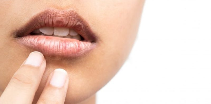 Understanding Dry Mouth