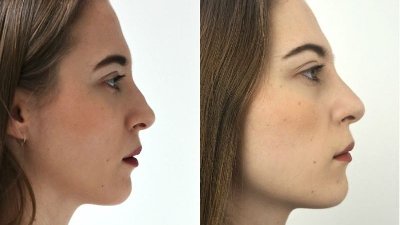 FAQs ABOUT NON-SURGICAL NOSE JOB