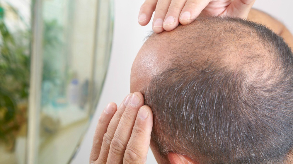 The effective and quick way of hair transplant to get hair again