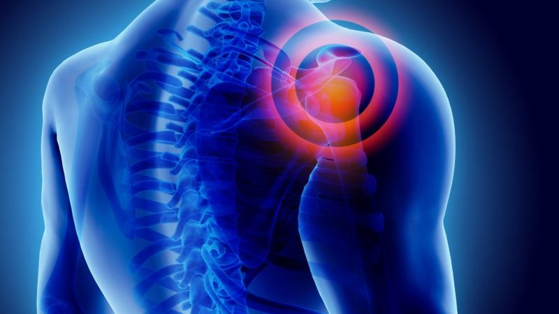 How to Prevent Shoulder Injuries