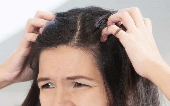 Get To Know More About Scalp Sores And Itching And Its Cures