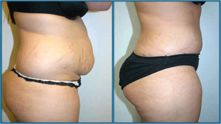 What Is A Tummy Tuck Surgery?