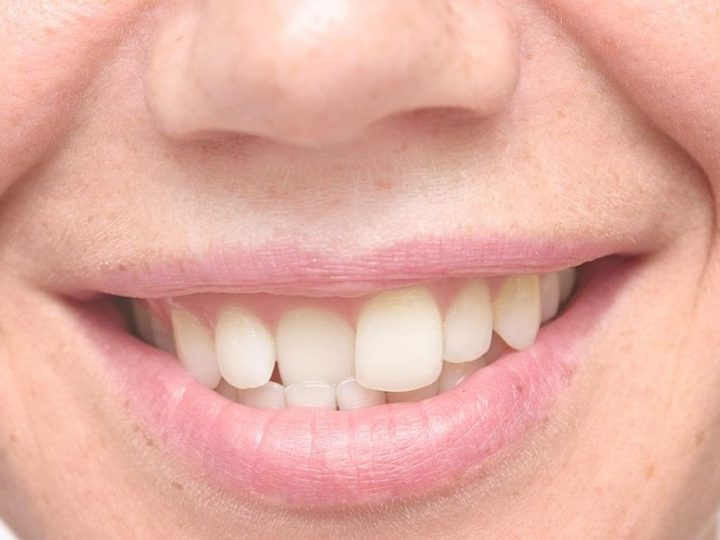 Do You Want The Most Natural Looking Smile?