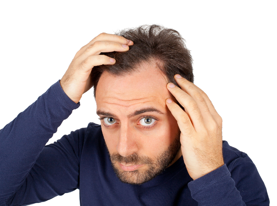 Important Factors That Affect Hair Transplant Cost In Jaipur