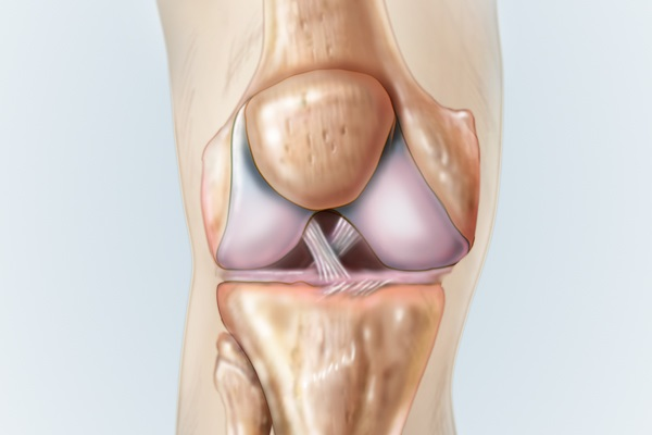 Is it Risky to Leave ACL Tears Untreated?