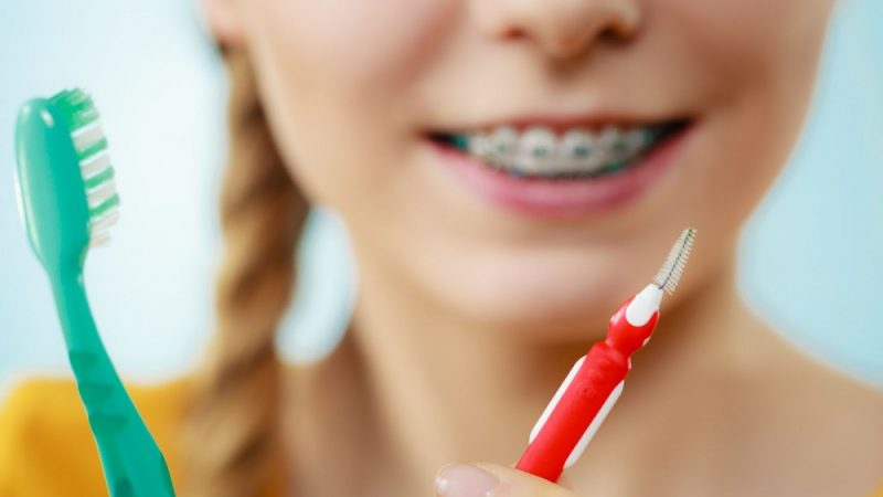Everything You Need To Know About Reusable Interdental Brush
