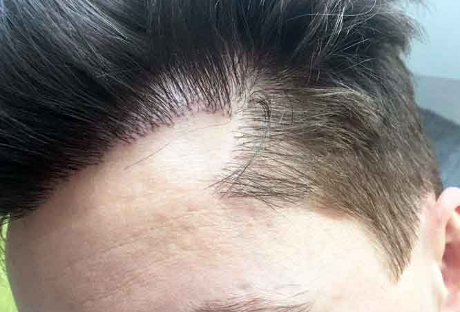 HOW TO GET THE BEST RESULTS FROM YOUR HAIR TRANSPLANT?