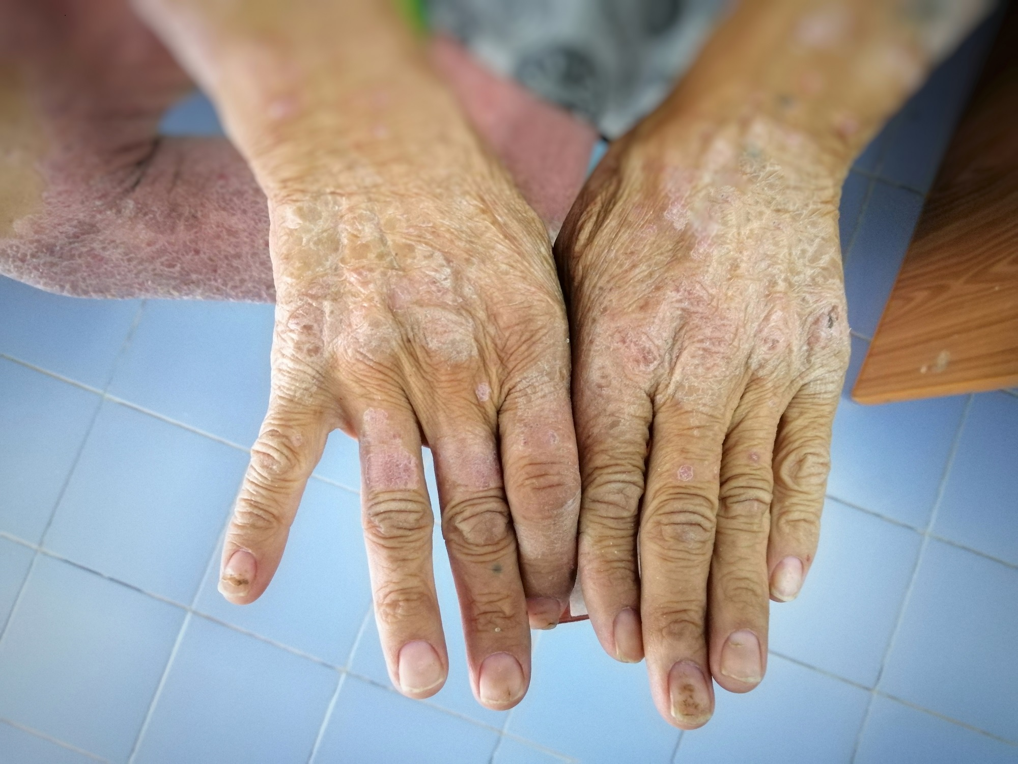 What You Need To Know About Lupus And Scleroderma