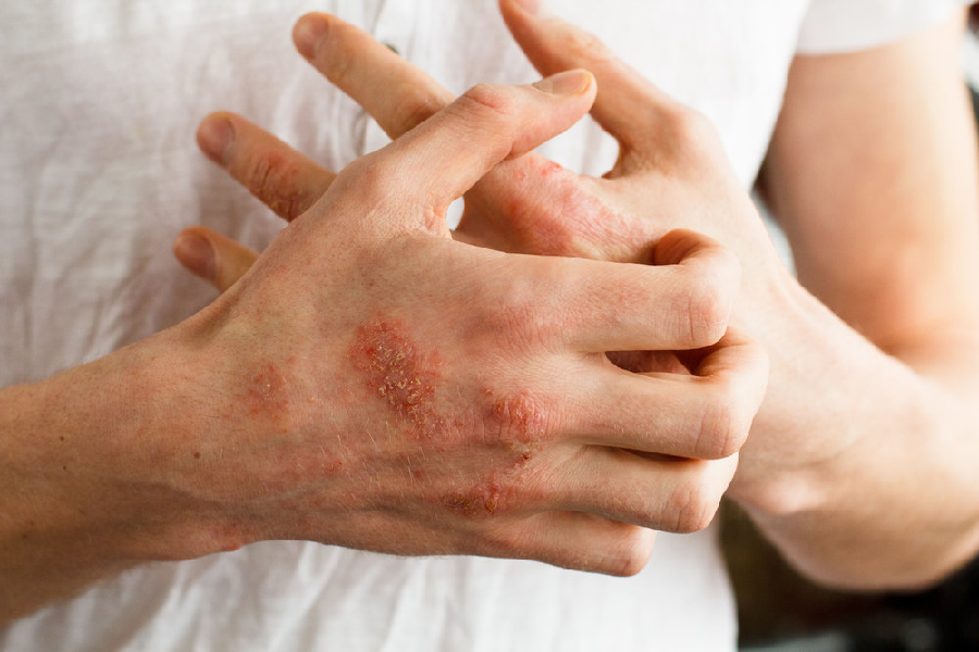 What is atopic dermatitis and its causes?